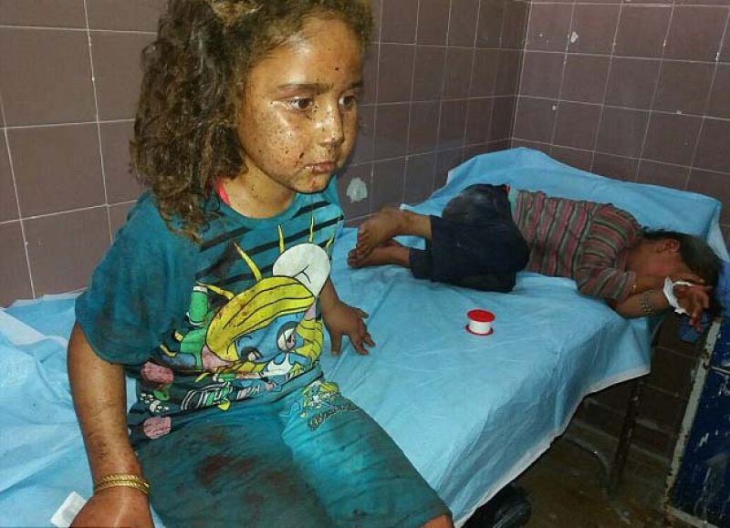 Harrowing images show Syrian children burnt by 'Napalm ...