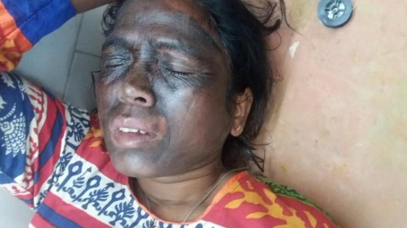 Tribal activist Soni Sori complained of burning sensation in her face after an attack. (Photo: Twitter)