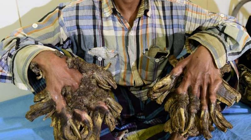 'Tree Man' of Bangladesh hopeful after surgery to remove bark-like growths