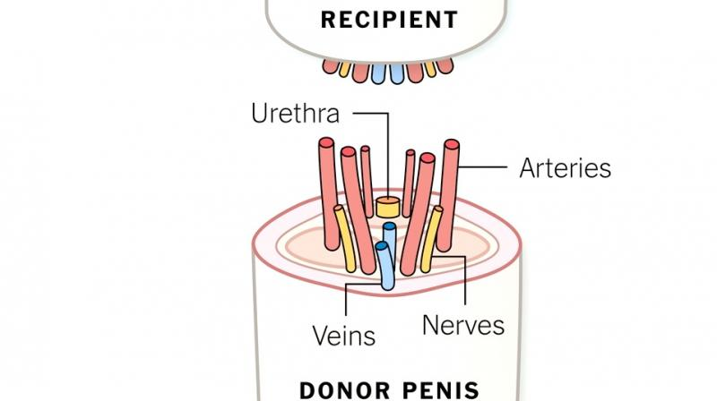 news penis highlights future transplants