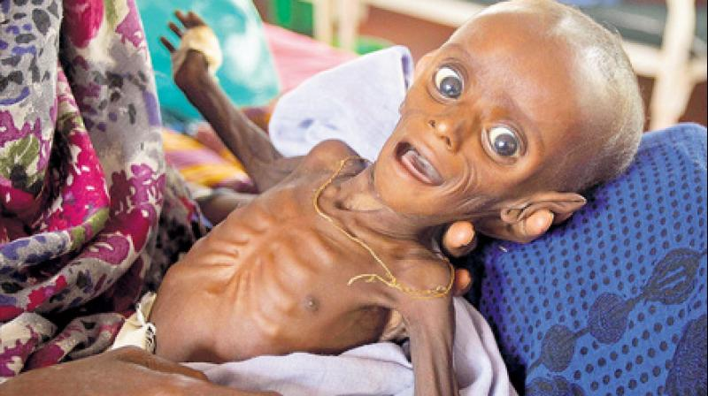Five million Somalis now going hungry