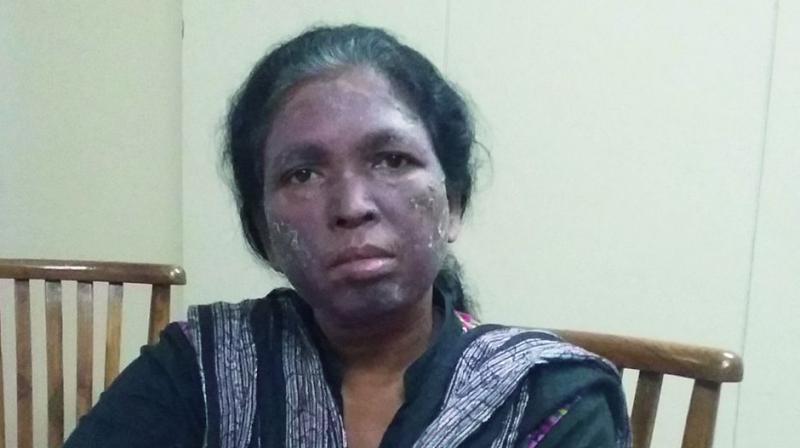 Human rights activist Soni Sori (inset before the attack)  (Photo: Ishaan Mital)