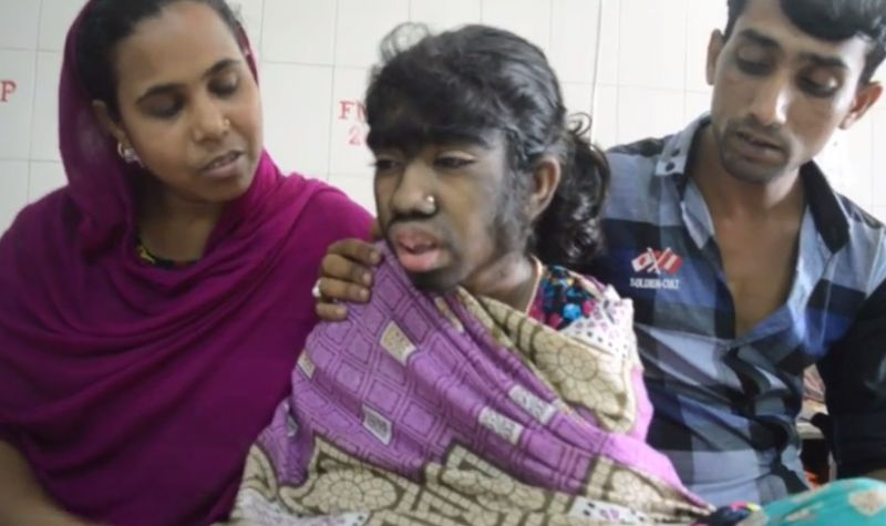 12 Year Old Girl Suffers From Werewolf Syndrome Covered