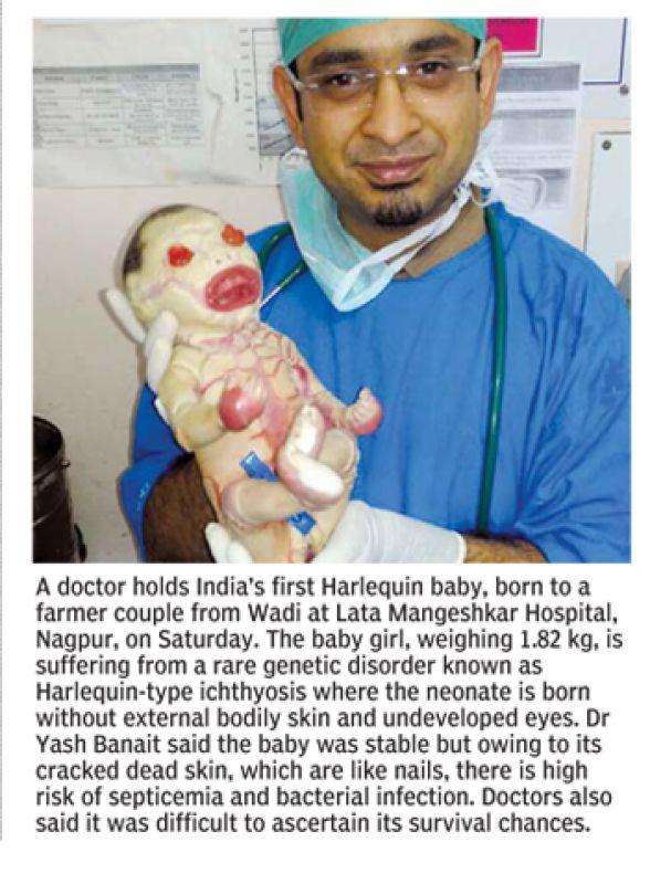 (Photo: Deccan Chronicle)
