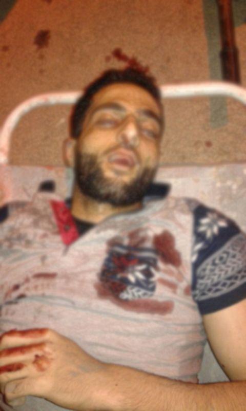 Hizbul Mujahideen militant Burhan Wani (Photo: Twitter)