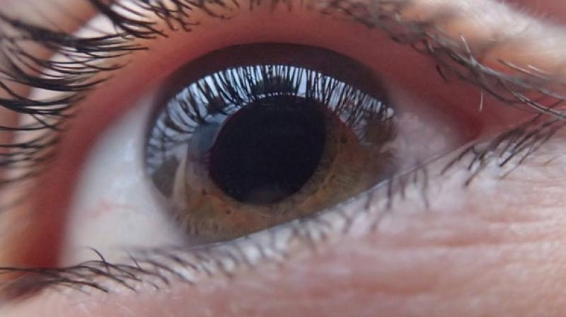 The surgeon alleges that the patient told her before the operation that she had a problem in her right eye. (Photo: Pixabay)