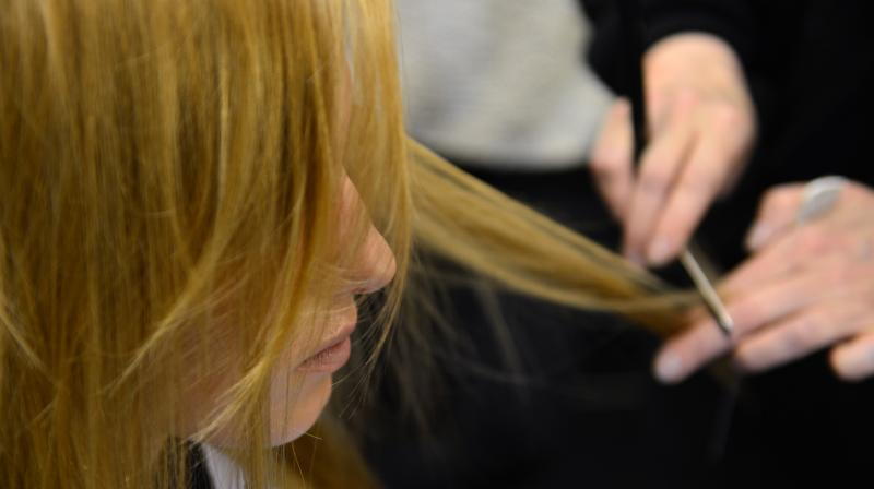 Hair loss occurs with the conditions called telogen effluvium (Photo: AFP)