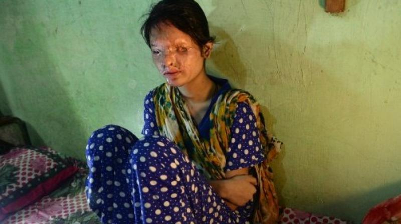 Reshma Qureshi, who lives in Mumbai, was attacked by her brother-in-law and pinned down by his friends who doused her face in acid in 2014. (Photo: AFP)