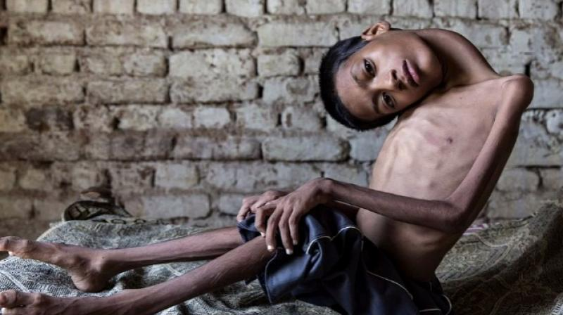 Mahendra Ahirwar is afflicted by a rare condition called congenital mypoathy, which had caused his head to hang at a 180-degree-angle. (Credit: YouTube)