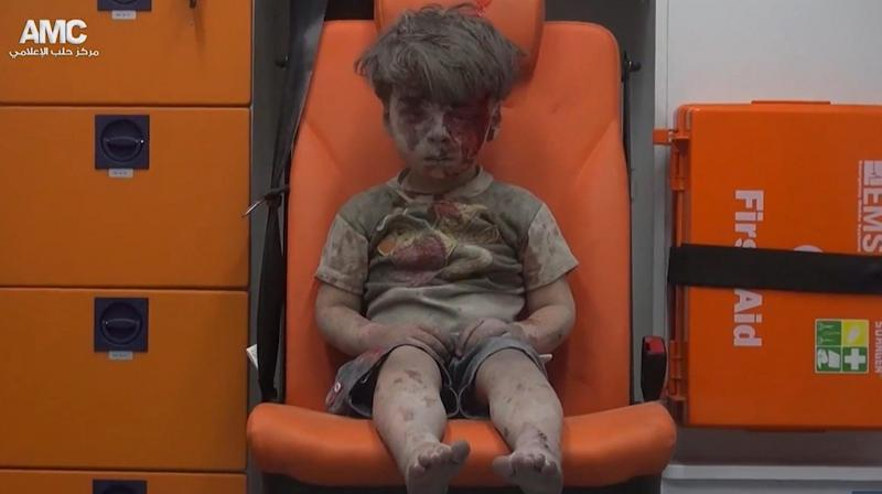 Omran Daqneesh sits in an ambulance after being pulled out or a building hit by an airstirke. (Photo: Via AP)