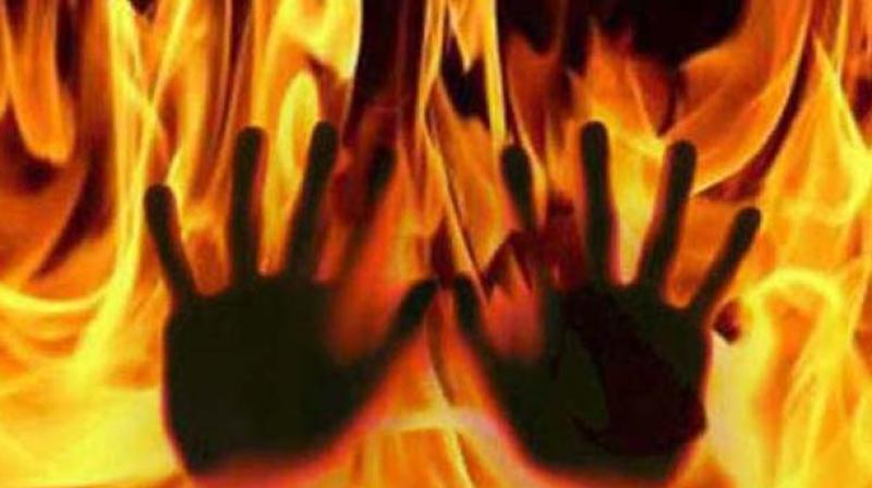 A couple set themselves on fire inside Surir police station on Wednesday over the alleged inaction by cops in connection with a scuffle which took place between the couple and the neighbours. (Representational Image)