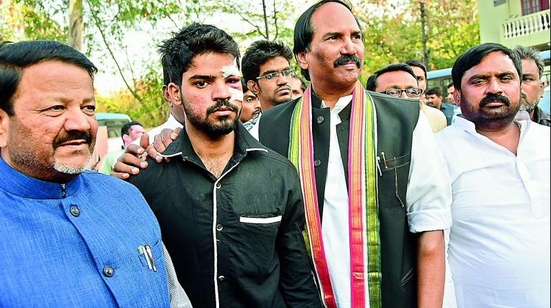 TPCC chief N. Uttam Kumar Reddy shows the injuries sustained by a party worker on polling day at the State Election Commissioners office. (Photo: DC)