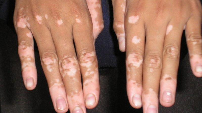 Pune Woman With Vitiligo Denied Massage Therapy Spa Apologises