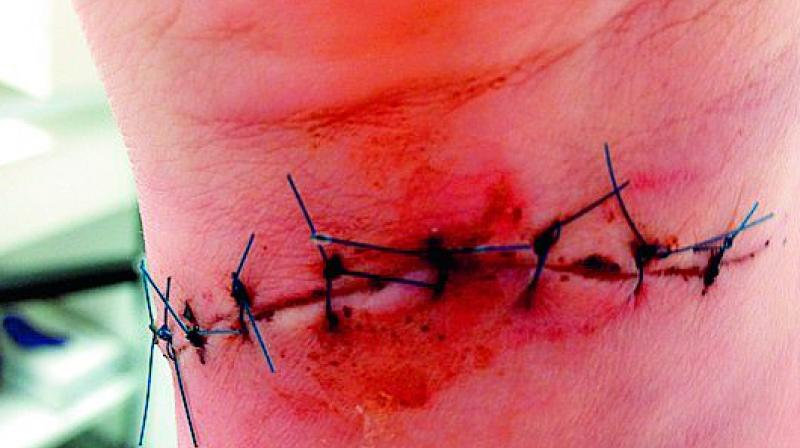 Smart threads: Smart stitches send data as they heal wounds