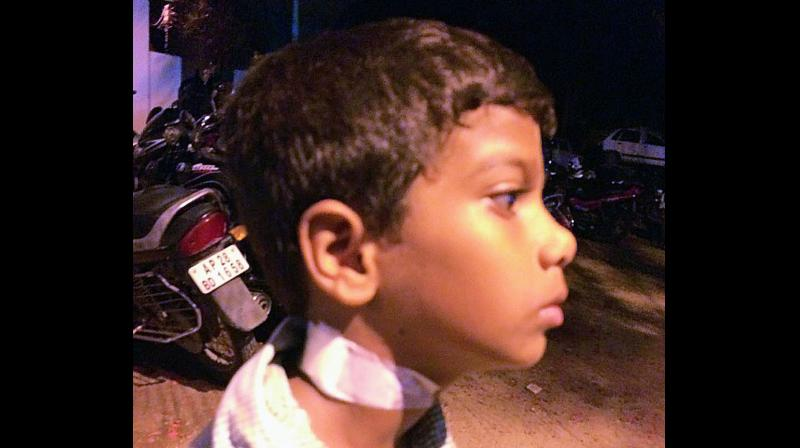 The pencil pierced half inch deep into Nani's neck.