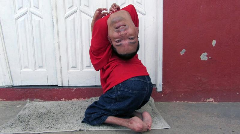 Meet The Man Born With Upside Down Head