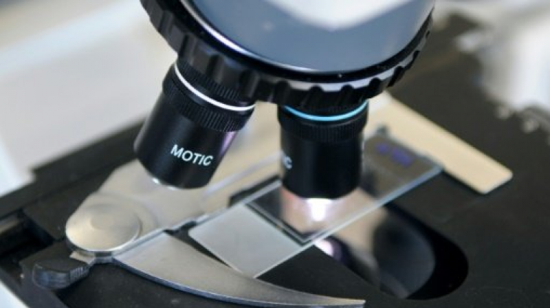 Researchers are trying to develop a genetic test that could be given to people with moles that may be cancerous. (Photo: AFP)