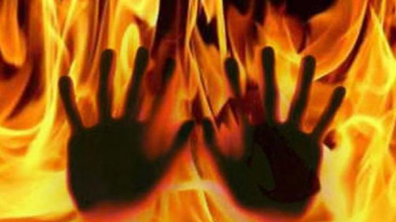 The exact reason for the fire is not known. (Representational Image)