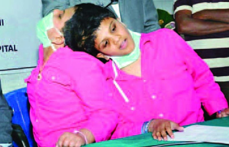 Can't separate Warangal conjoined twins, say AIIMS doctors