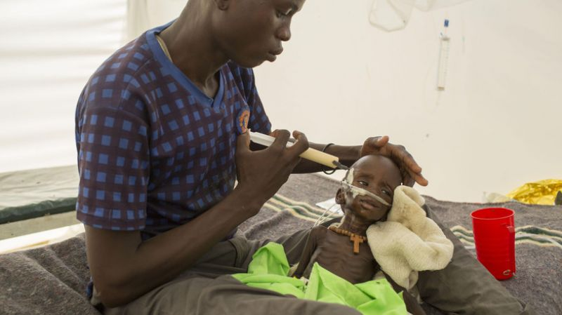 A severely malnourished child with the father at MSF hospital Bentiu, South Sudan. (Photo: AP)